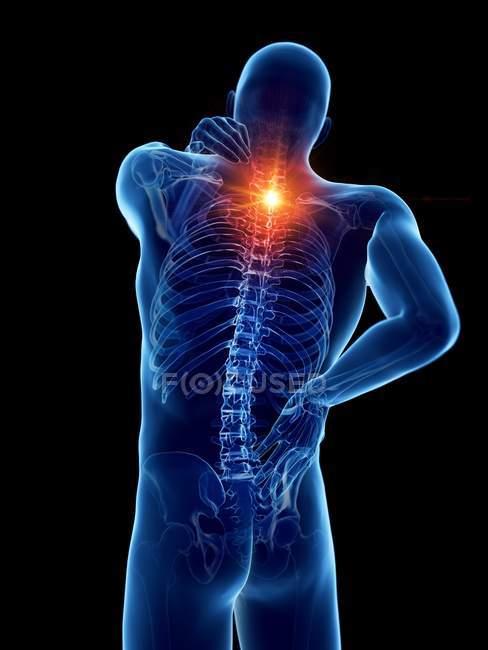 Cuerpo masculino con dolor de espalda sobre fondo negro, ilustración digital . - foto de stock