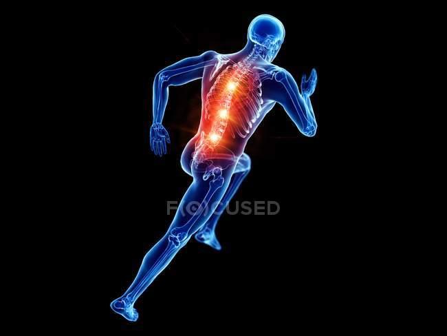 Silueta de corredor masculino con dolor de espalda, ilustración digital conceptual . - foto de stock