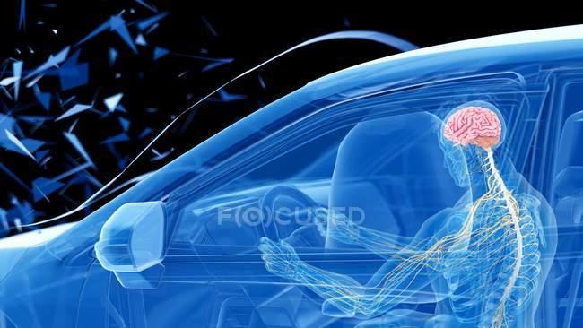 Рентгенівська ілюстрація ризику травм головного мозку, а голова-на автокатастрофі, цифрова ілюстрація. — стокове фото