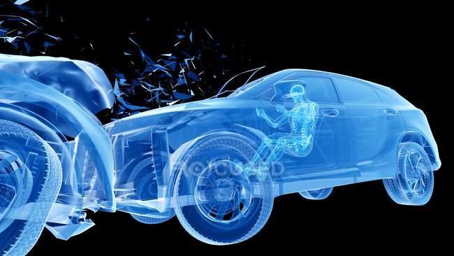Riesgo de lesiones durante el choque frontal del coche, ilustración digital . - foto de stock