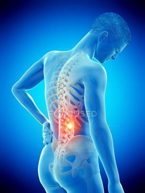Чоловічий силует з болем у спині на синьому фоні, Концептуальна ілюстрація. — стокове фото