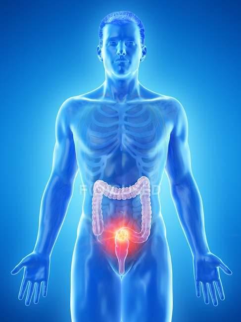 Cáncer de colon en el cuerpo masculino, ilustración conceptual por computadora . - foto de stock
