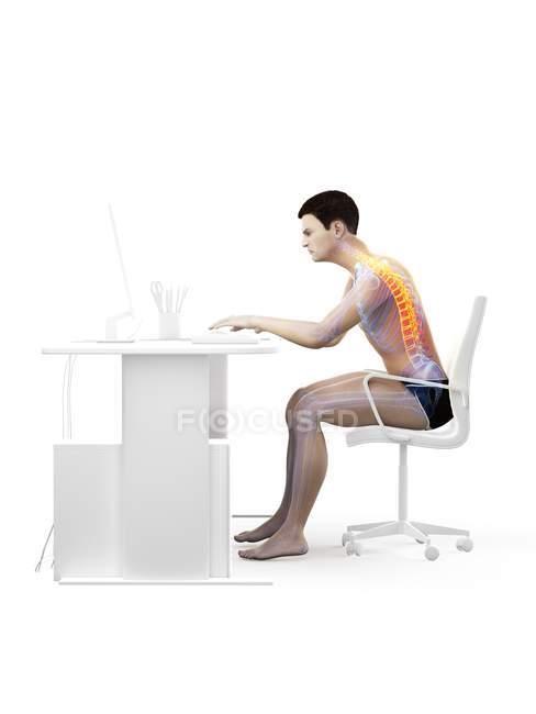 Боль в спине офисного работника, сидящего и работающего за столом, концептуальная иллюстрация . — стоковое фото