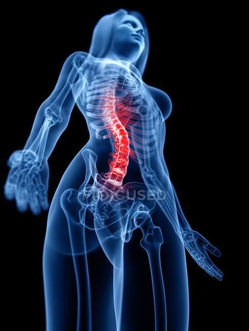 Silueta femenina abstracta con dolor de columna, ilustración conceptual . - foto de stock