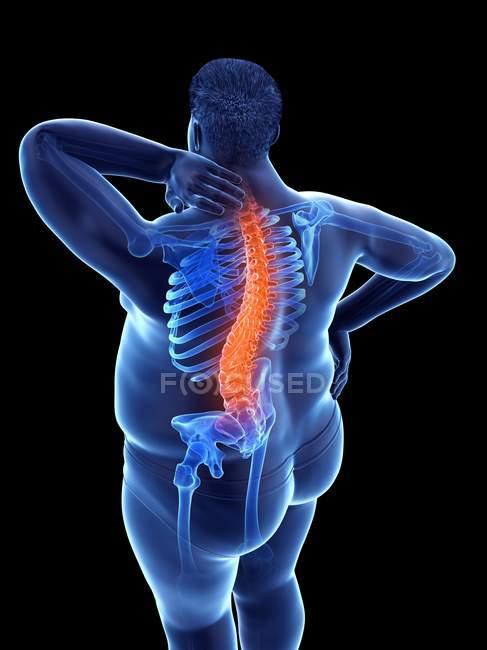 Cuerpo masculino obeso con dolor de espalda en vista de ángulo alto, ilustración digital . - foto de stock
