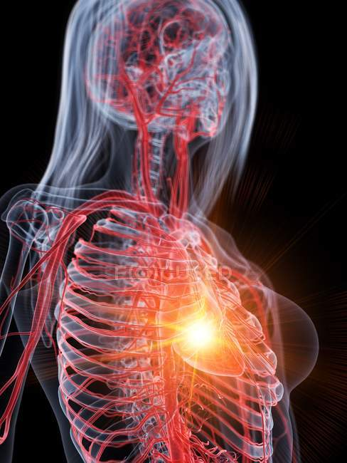 Heart attack in human body, conceptual illustration. — Stock Photo