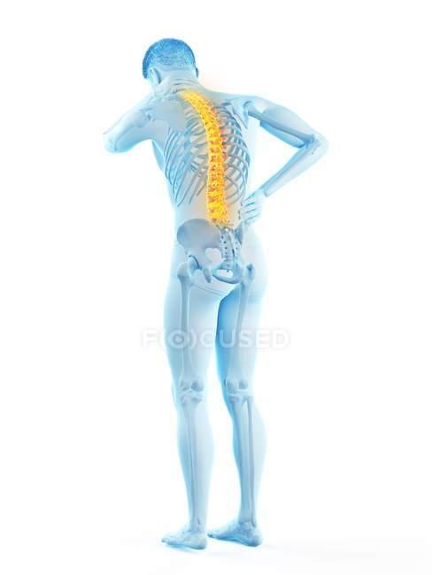Vista trasera del cuerpo masculino en longitud completa con dolor de espalda, ilustración conceptual . - foto de stock