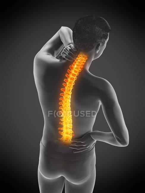 Silueta masculina con dolor de espalda sobre fondo negro, ilustración conceptual . - foto de stock