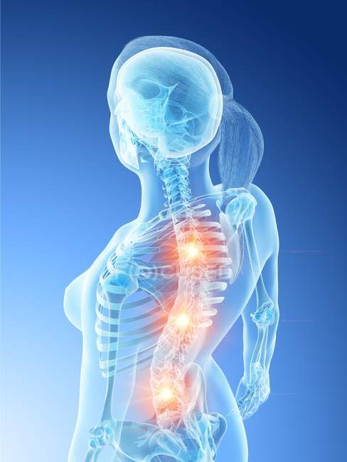 Жіночий силует з світяться болі в спині, Концептуальна Цифрова ілюстрація. — стокове фото