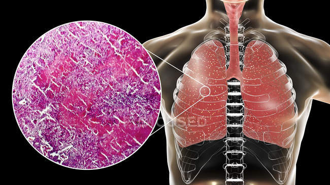 Miliary tuberculosis disease in lungs, digital illustration and light micrograph. — Stock Photo