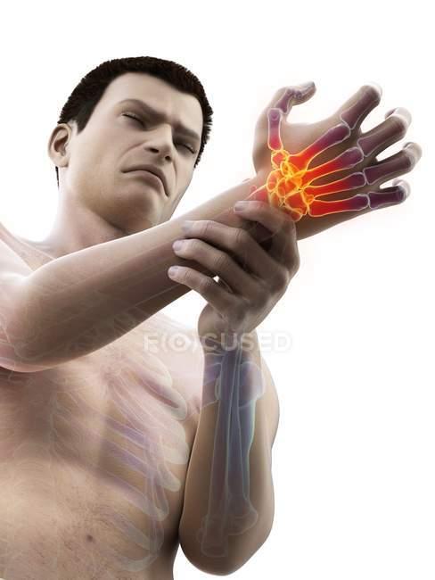 Corpo masculino com dor de pulso brilhante, ilustração conceitual . — Fotografia de Stock