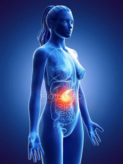 Cáncer de páncreas en el cuerpo femenino, ilustración conceptual por computadora . - foto de stock
