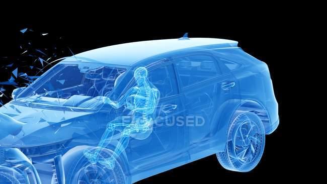 Illustration par rayons X du risque de blessure lors d'un accident de voiture frontal, illustration numérique . — Photo de stock