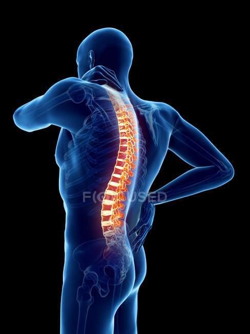Silhouette del corpo maschile con mal di schiena, illustrazione digitale . — Foto stock