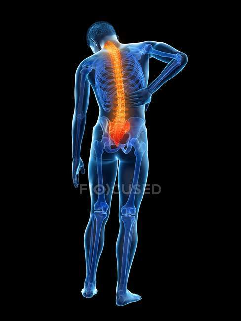 Vista trasera del cuerpo masculino con inflamación y dolor de espalda, ilustración conceptual . - foto de stock