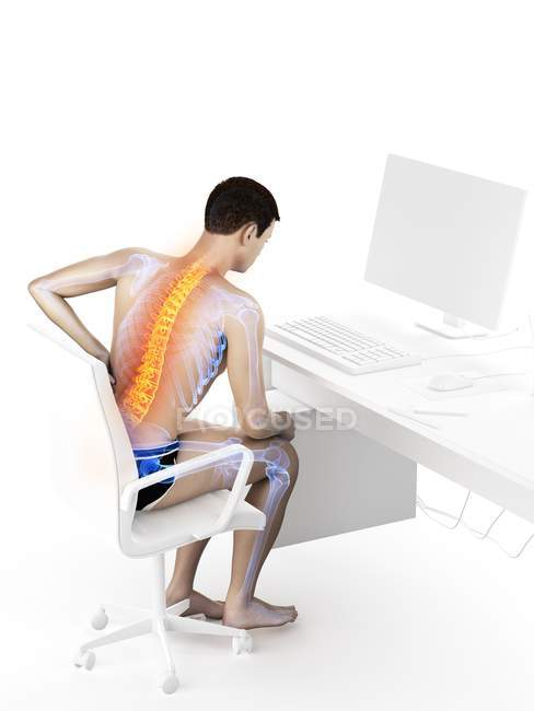Trabajador de oficina masculino con dolor de espalda debido a sentado, ilustración conceptual . - foto de stock