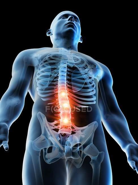Концептуальная цифровая иллюстрация боли в пояснице в прозрачном человеческом силуэте. — стоковое фото