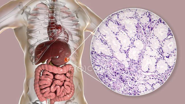 Adenocarcinoma mucinoso de estômago humano, ilustração computadorizada e micrografia de luz . — Fotografia de Stock