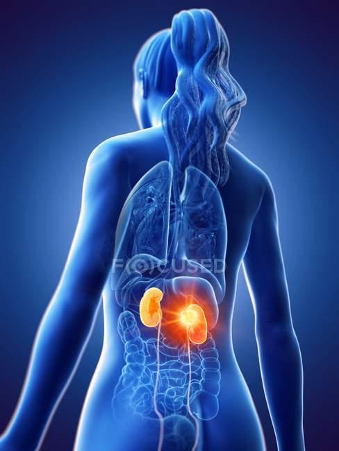 Visão de baixo ângulo da mulher com tumor renal, ilustração do computador . — Fotografia de Stock