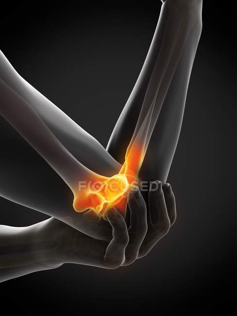 Close-up of human body with elbow pain, digital illustration. — Stock Photo