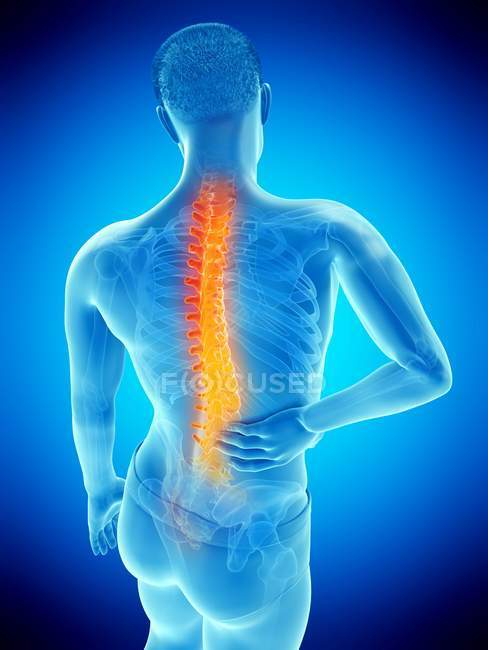 Male body with back pain in high angle view, conceptual illustration. — Stock Photo