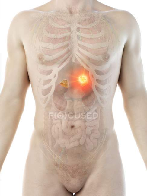 Tumor de la glándula suprarrenal en el cuerpo masculino, ilustración conceptual por ordenador . - foto de stock