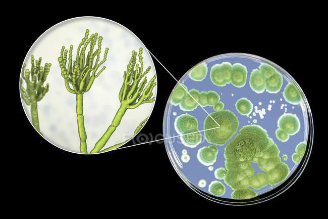 Colonias de hongos Penicillium cultivados en Sabouraud Dextrosa Agar e ilustración digital de la morfología fúngica . - foto de stock