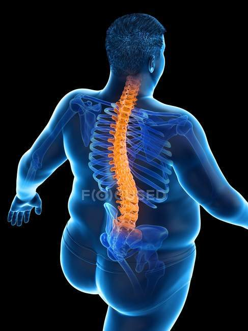 Obese male body with back pain in high angle view, digital illustration. — Stock Photo