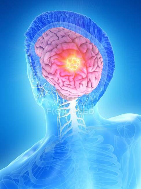 Tumor cerebral en el cuerpo masculino, ilustración conceptual por computadora . - foto de stock