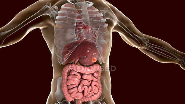 Cáncer de estómago humano, ilustración por computadora . - foto de stock