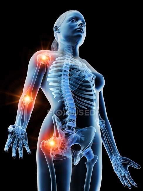 Cuerpo femenino abstracto con lugares de dolor articular, ilustración digital conceptual . - foto de stock