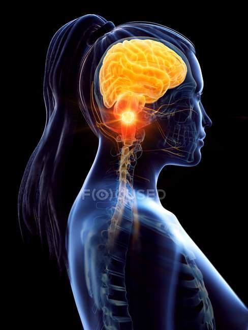 Cancer du cerveau dans le corps féminin, illustration conceptuelle par ordinateur . — Photo de stock