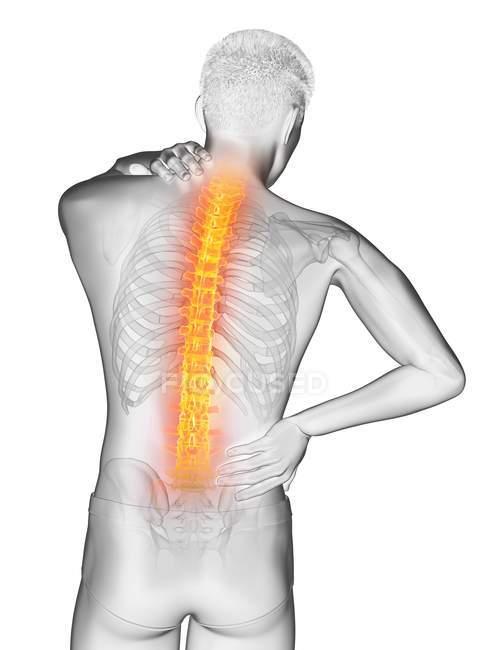 Чоловічий силует з болем у спині, Концептуальна ілюстрація. — стокове фото