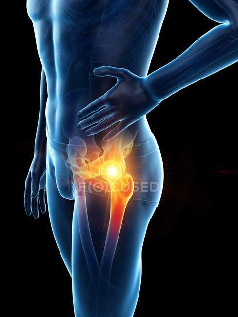 Silueta corporal masculina con dolor de cadera visible, ilustración digital . - foto de stock