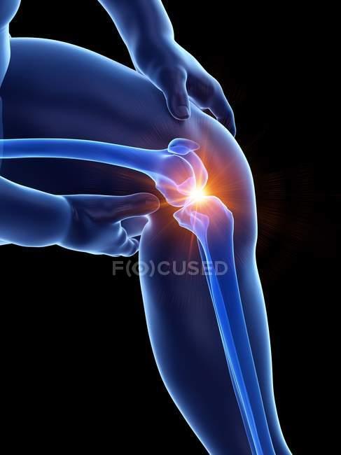 Людина з ожирінням страждає від болю коліна, концептуальний приклад. — стокове фото