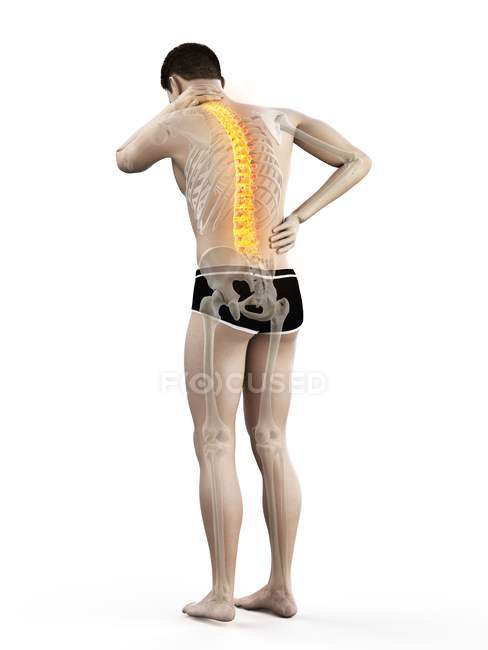Rear view of male body in full length with back pain, conceptual illustration. — Stock Photo