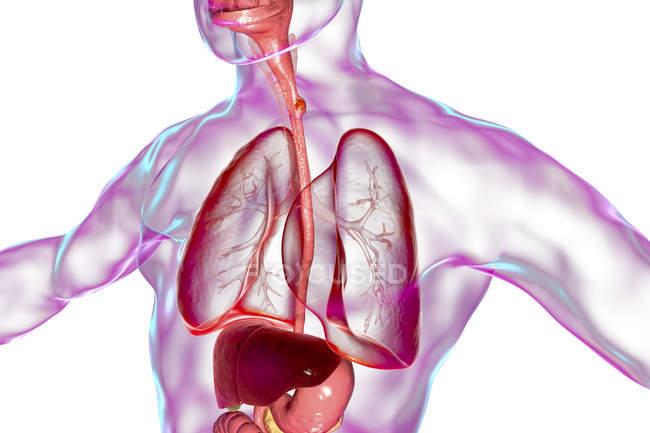 Cáncer de esófago en el cuerpo masculino, ilustración digital abstracta . - foto de stock