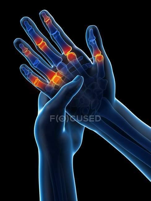 Абстрактные человеческие руки с болью в пальцах, концептуальная иллюстрация. — стоковое фото