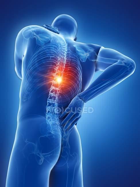 Силует чоловічого тіла з болем у спині в режимі низького кута огляду, цифрова ілюстрація. — стокове фото