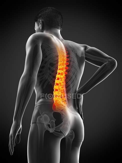 Silueta masculina con dolor de espalda en ángulo bajo, ilustración conceptual . - foto de stock