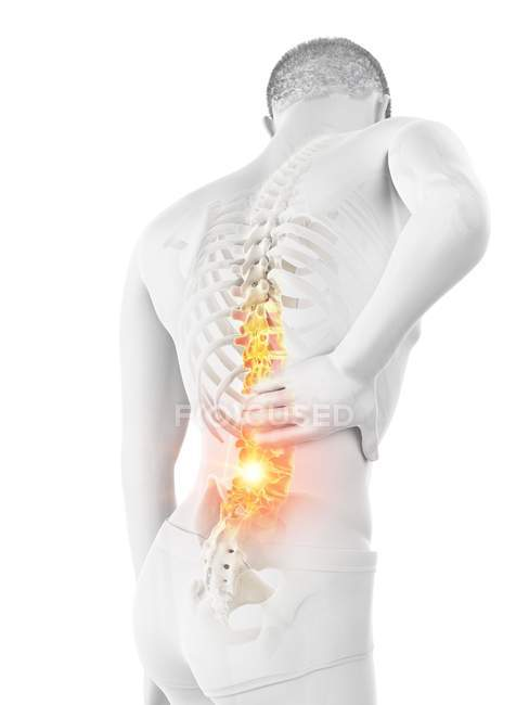 Чоловічий силует з болем у спині на білому фоні, Концептуальна ілюстрація. — стокове фото