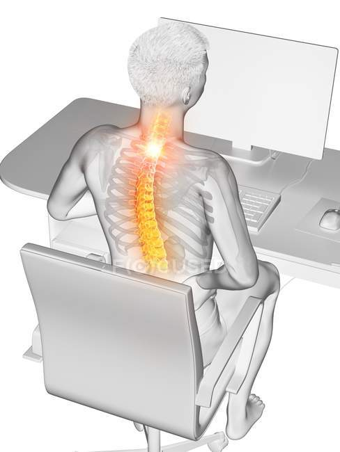 Trabajador de oficina con dolor de espalda en vista de ángulo alto, ilustración conceptual . - foto de stock