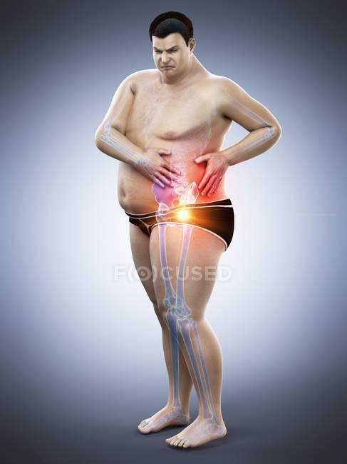 Silhouette of obese man with hip pain, digital illustration.. - foto de stock