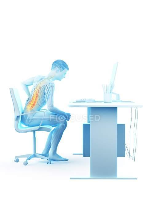 Vista laterale del lavoratore d'ufficio con mal di schiena a causa di seduta alla scrivania, illustrazione concettuale . — Foto stock