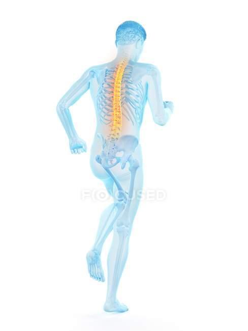 Silueta masculina con dolor de espalda, ilustración conceptual . - foto de stock