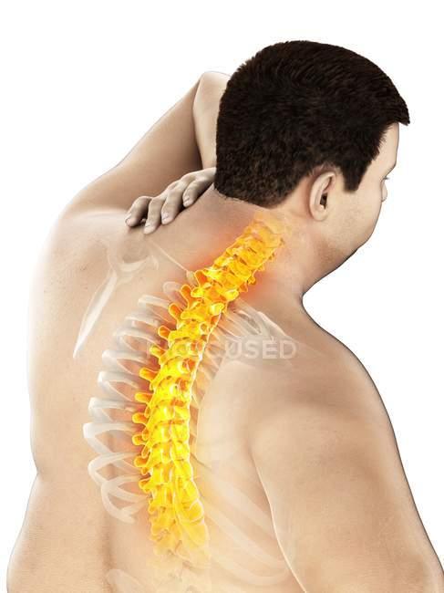 Primer plano del varón con sobrepeso y dolor de espalda, ilustración conceptual . - foto de stock