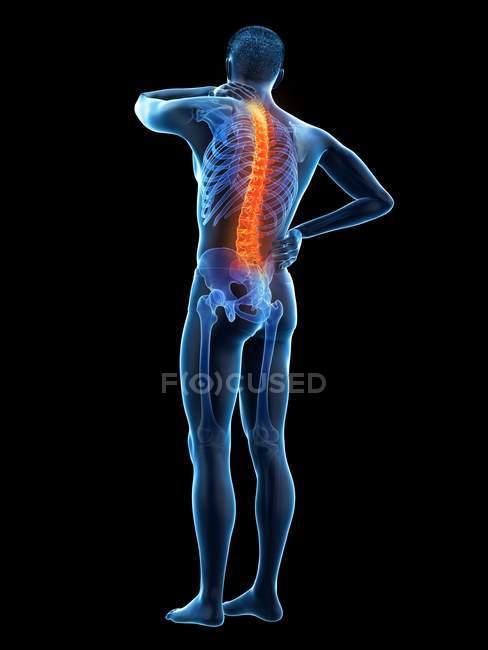 Cuerpo masculino con dolor de espalda en la vista trasera, ilustración conceptual . - foto de stock