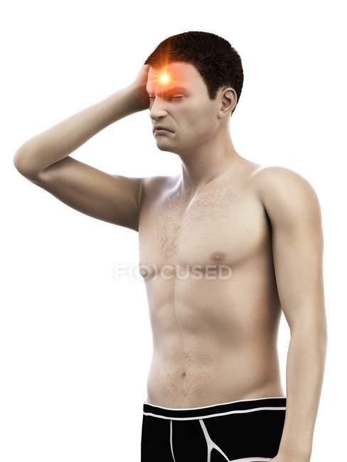 Hombre con dolor de cabeza, ilustración médica conceptual . - foto de stock