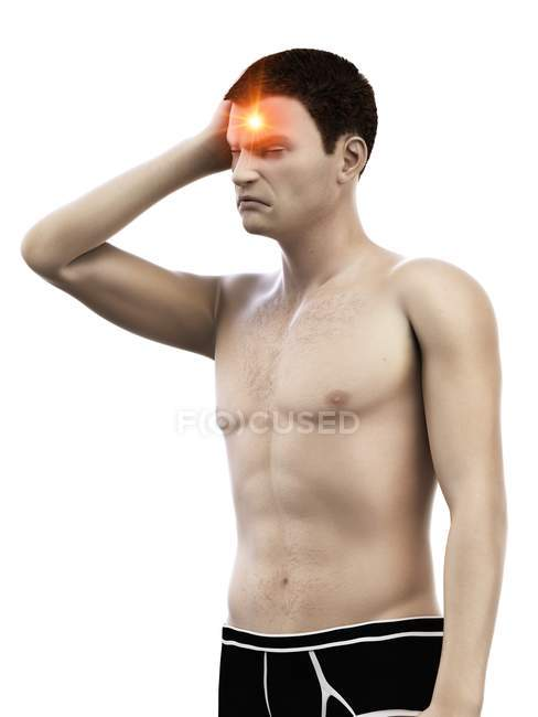 Man with headache, conceptual medical illustration. — Stock Photo