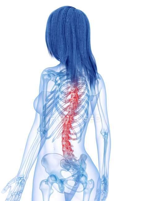 Silueta femenina con dolor de espalda en la vista trasera, ilustración conceptual . - foto de stock